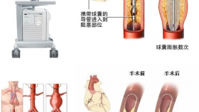 心病科护理简介及技术特色